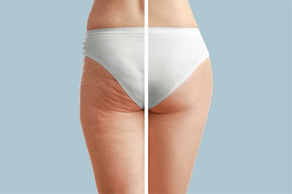 Will Thigh Lift Surgery Remove Cellulite?